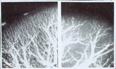 angiograms showing the blood vessel circulation with scleroderma