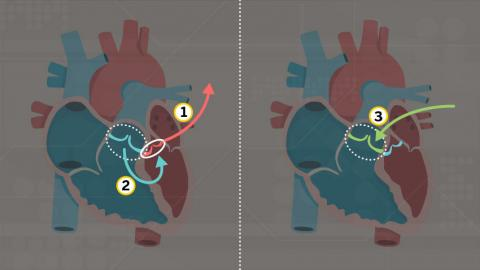 Illustration of two hearts side by side showing removal of damaged aortic valve, replacement of it with existing pulmonary valve and insertion of new pulmonary valve