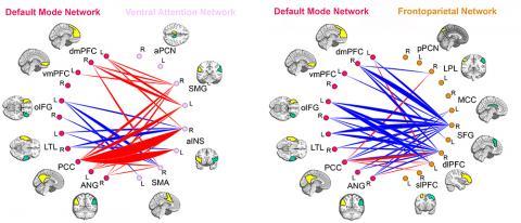 ADHD brain networks