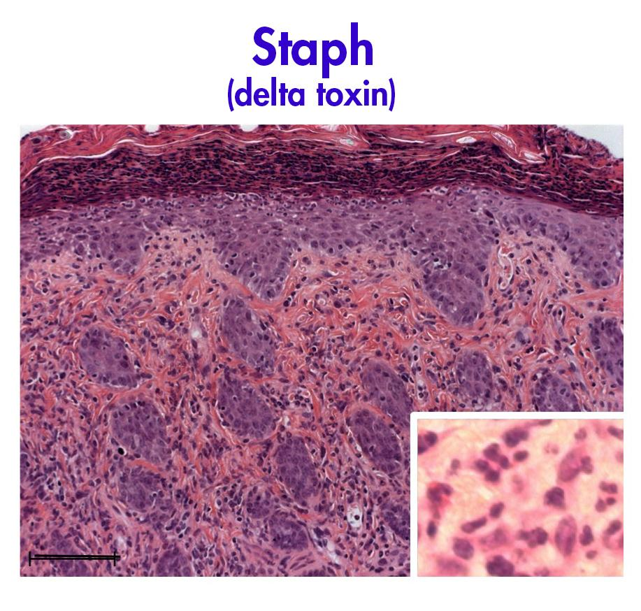 Staph infection in mouse skin