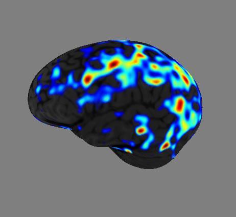 TMS brain scan