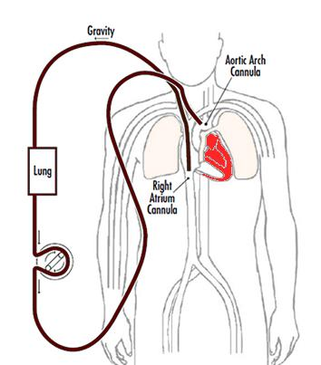ECMO diagram