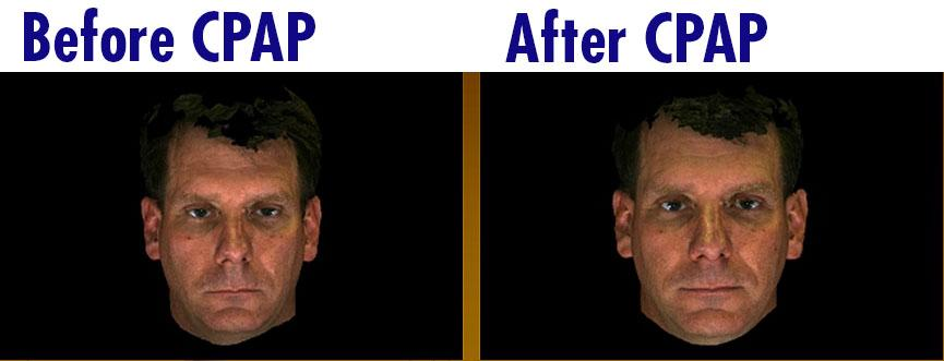Before & after CPAP