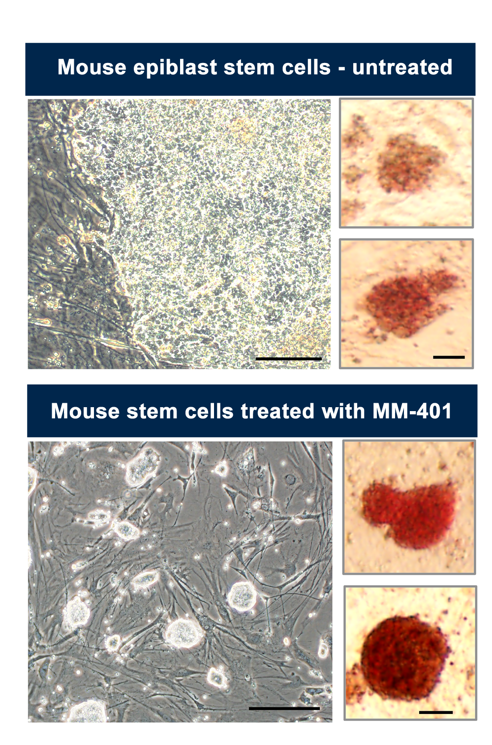 Stem cell before and after MM-401 treatment