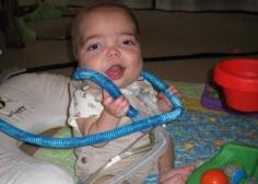 study  Children dependent on long-term mechanical ventilation    Ventilator Patient Child