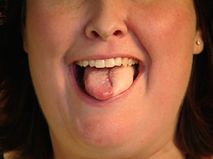 Unique U M Surgery Creates Fully Usable Tongue Following Tongue Cancer Michigan Medicine